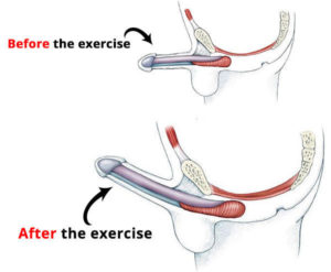 before-after-kegel-exercise